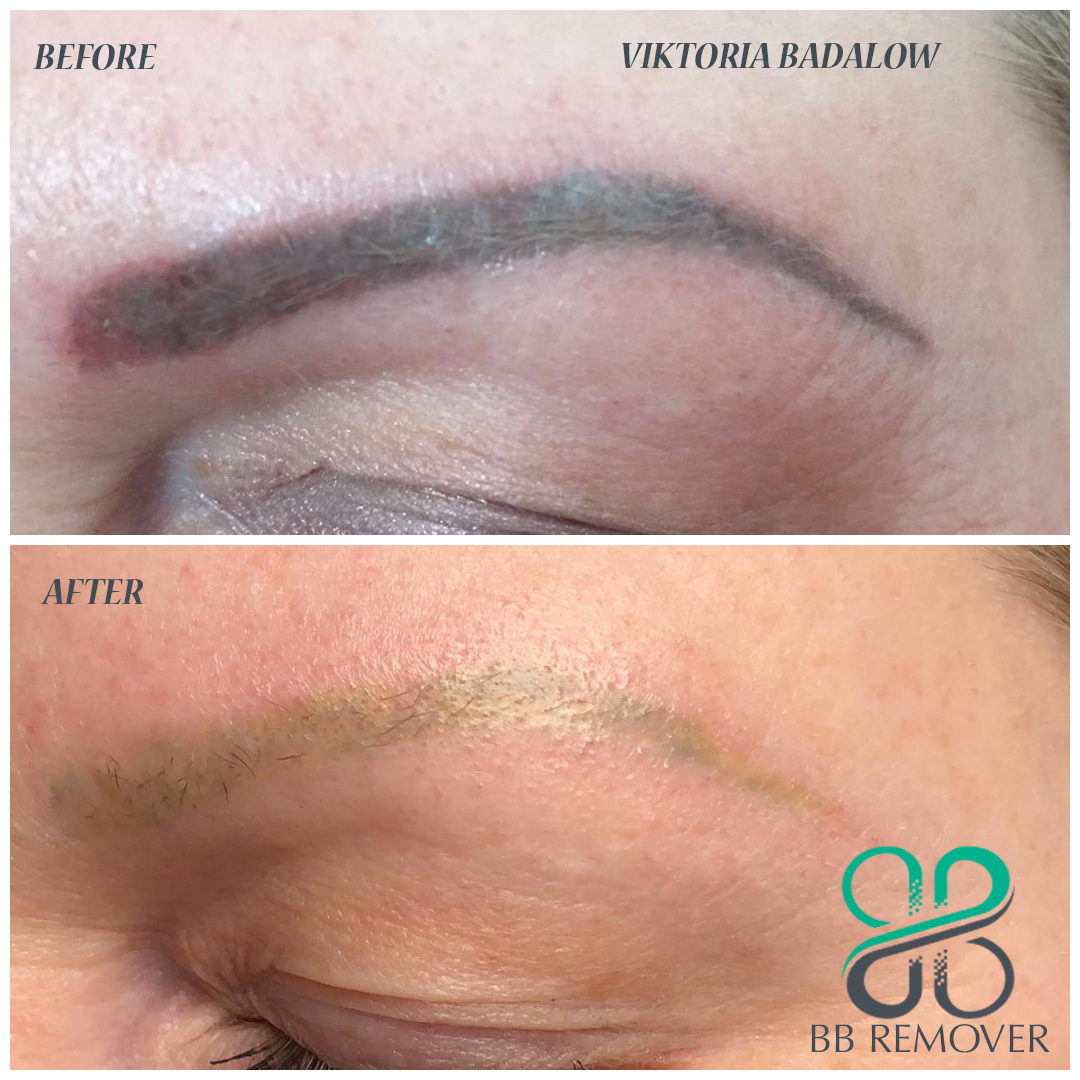 Permanent-Makeup-Removal